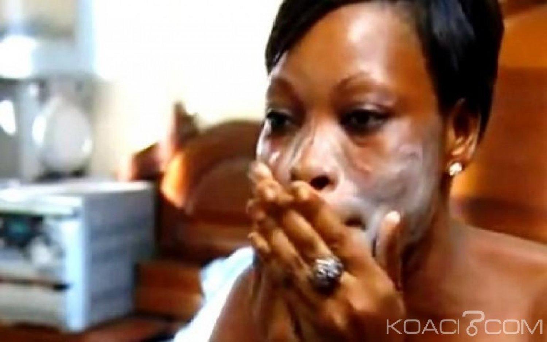 Rwanda : Kigali poursuit sa guerre  contre la dépigmentation