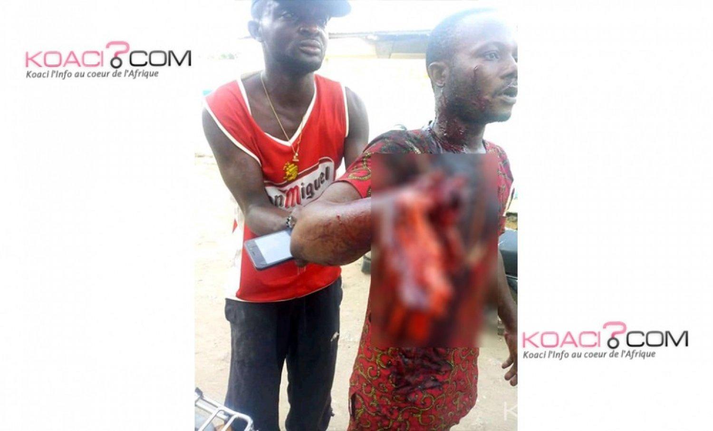 Bénin: 02 morts au moins suite à l'intervention des forces de sécurité au quartier Cadjehoun