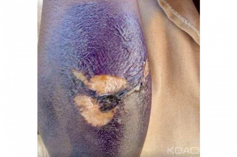 Côte d'Ivoire : Pour avoir abîmé ses batteries solaires, un père marque au couteau  ses enfants