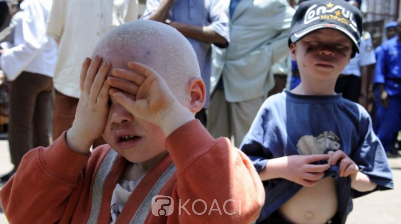 Burundi: Le corps d'un albinos de15 ans retrouvé démembré à la frontière avec la RDC