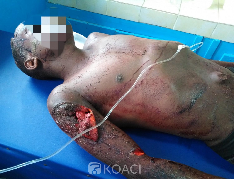 Côte d'Ivoire: Sous l'effet de la drogue, un homme s'énerve et découpe son ami à la machette !