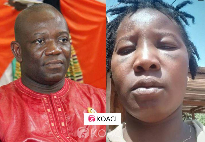 Côte d'Ivoire: Scandale à Sangouiné, une dame accuse le maire de l'avoir bastonnée dans l'affaire d'un litige foncier