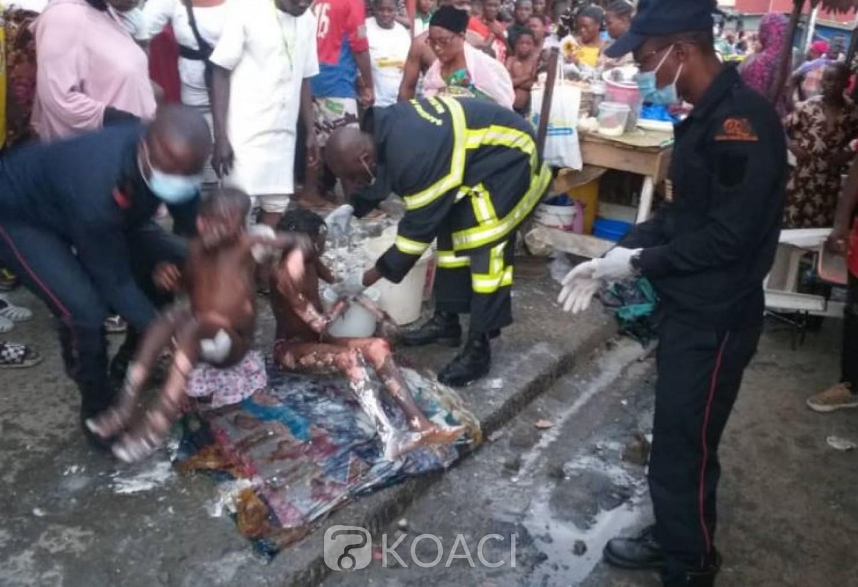 Côte d'Ivoire : Adjamé, des brûlés dans l'explosion d'une  bouteille lors d'une fête de réjouissance