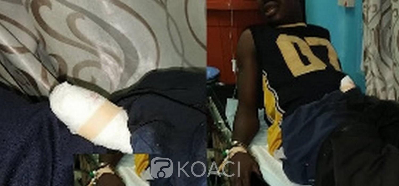 Ghana :  Un violeur mordu au pénis à Obuasi