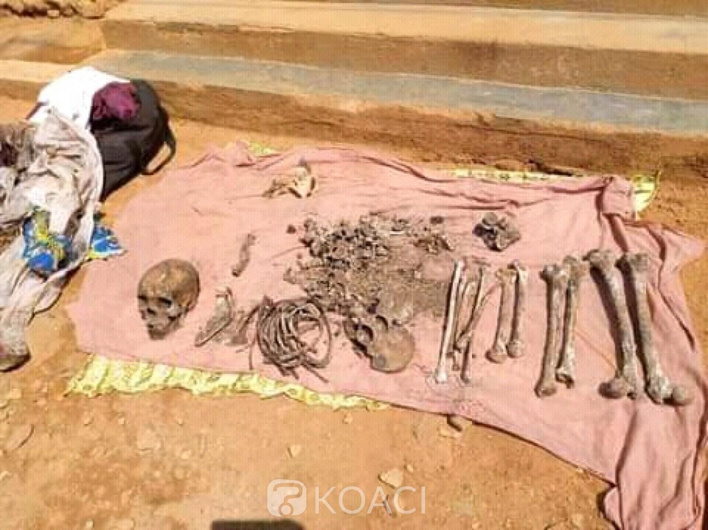 Cameroun : Trafic d'ossements humains,  démantèlement d'un réseau de cinq présumés trafiquants à l'ouest