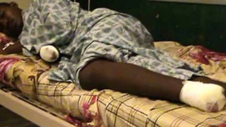Mali : Des civils accusés de vol amputés à Gao , réactions de la Minusma et de l'armée