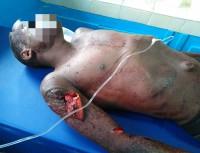 Côte d'Ivoire: Sous l'effet de la drogue, un homme s'énerve et dé...