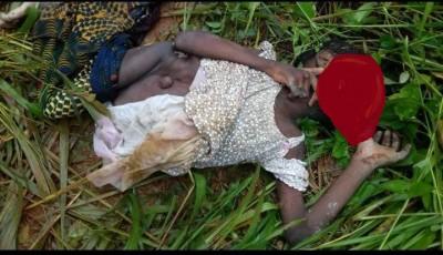 Côte d'Ivoire: Duekoué, un enfant de 14 ans atteint de malformation, découvert dans u...