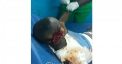 Côte d'Ivoire: Drame, plusieurs étudiants victimes d'un  grave accident alors qu'ils se rendaient à San-Pédro