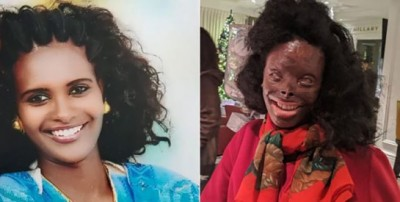 Ethiopie : Défigurée à l'acide par son mari : « Il y a plus de bonnes personnes que de mauvaises »
