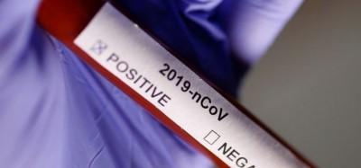 Togo : Un premier cas de Coronavirus confirmé chez une dame à Lomé
