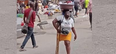 Nigeria : Controverse autour d'une entreprenante amputée, Lagos lui suspend son aide