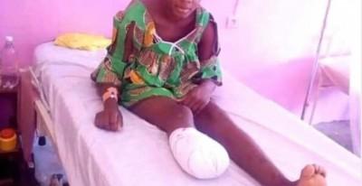 Cameroun : Son pied découpé à la machette pour une affaire de spaghettis