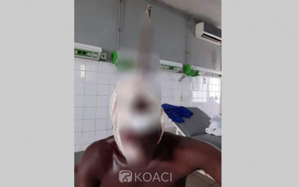 Côte d'Ivoire: En plein boulot, une barre de fer transperce la tête d'un ouvrier