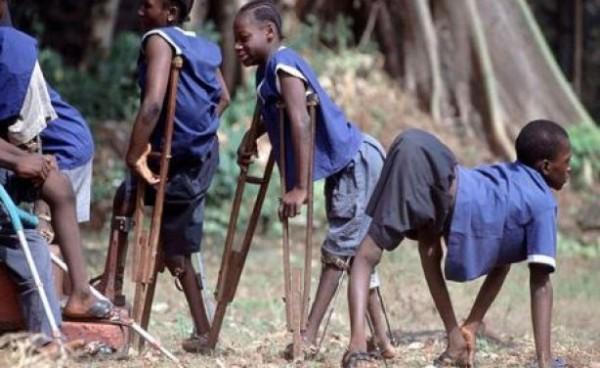 Cameroun : Annoncée éradiquée, l'épidémie de poliomyélite fait son retour - KOACI - Koaci