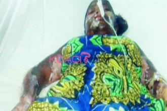Nigeria : Par jalousie, elle met le feu à la petite amie de son ex copain