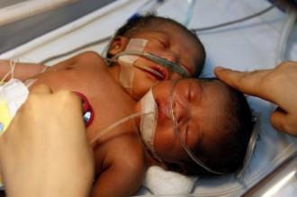 CNHU – HKM: Un bébé à deux têtes décède quelques minutesaprès sa naissance