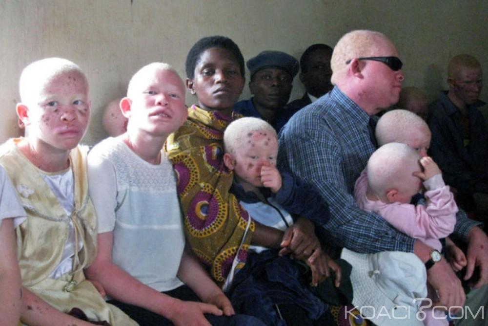 Malawi: Dix arrestations après le meurtre d'une femme albinos  de 21 ans