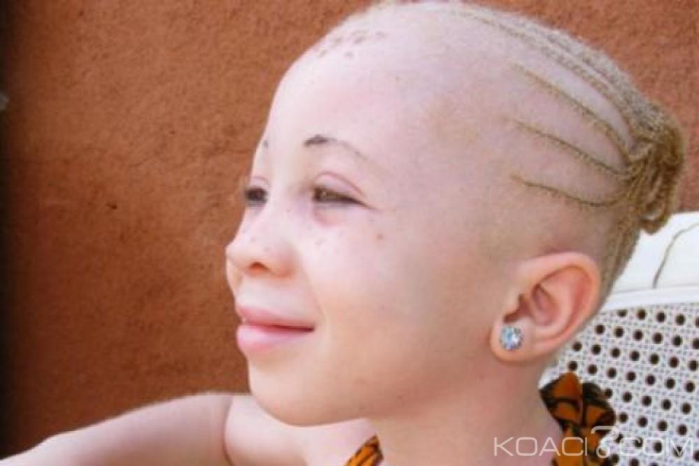 Malawi: Assassinats d'albinos, les sorciers et tradi -patriciens interdits d'exercer