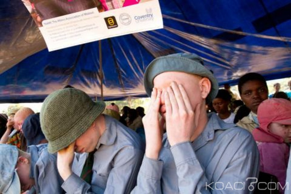 Malawi: Amnesty dénonce une vague d'attaques contre les albinos, victimes de crimes rituels