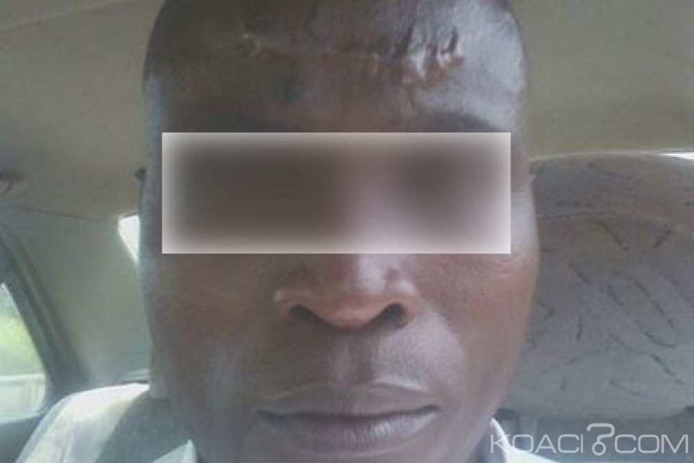 Côte d'Ivoire: Le professeur tabassé par les gendarmes à San Pédro libéré, il décide de porter plainte