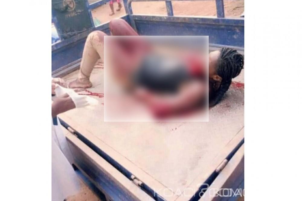 Côte d'Ivoire: Une femme tailladée à la machette par son compagnon à Grand Béréby