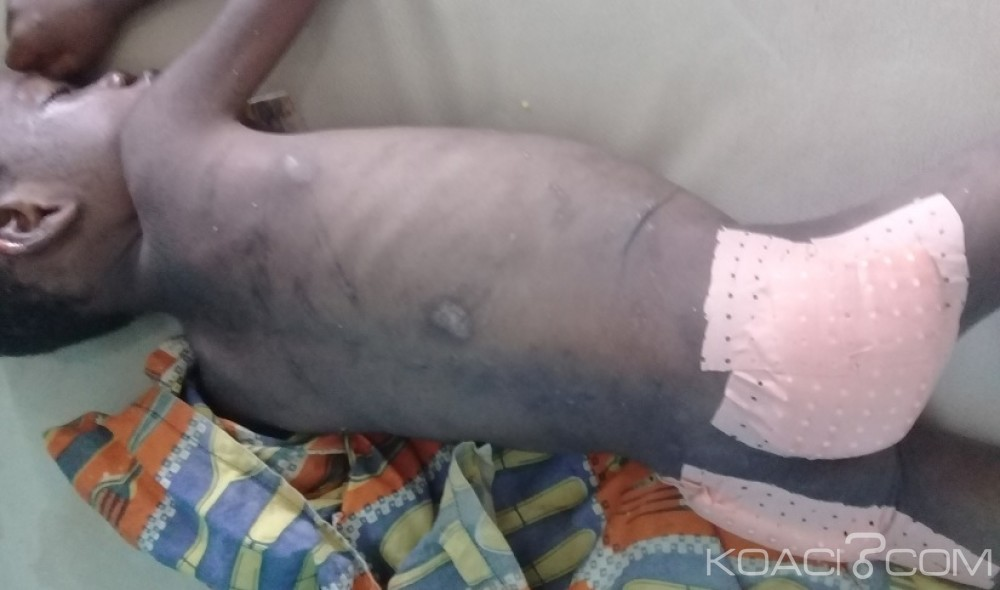 Côte d'ivoire: SOS pour un garçonnet victime de sévices corporels de la part de son oncle pour avoir mangé la tête de cabri