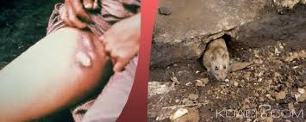 Madagascar : Un couple meurt de la peste pulmonaire dans le centre